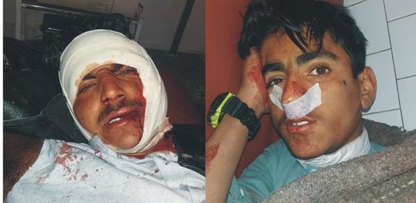 مٹہ میں موٹر سائیکل اور موٹر کار میں تصادم ،دو افراد زخمی