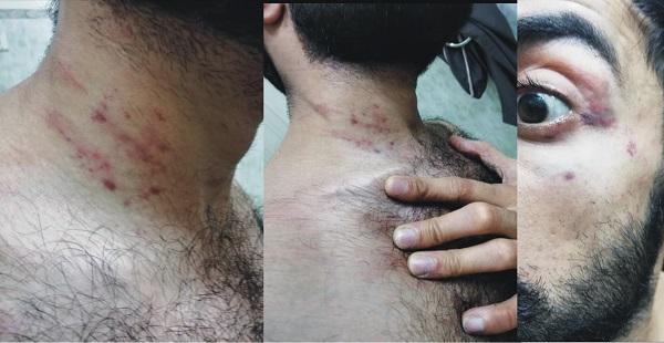 مینگورہ پولیس کی پولیس گردی ، نوجوان کو شدید تشدد کا نشانہ بناکر ہسپتال پہنچایا