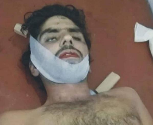 سوات میں ناجائز تعلقات، خاتون سمیت دو افراد کو زہر دیدیا گیا
