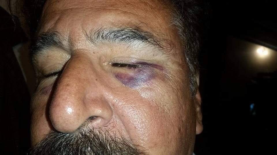 بونیر پولیس کا سوات کے رہائشی پر مبینہ تشدد